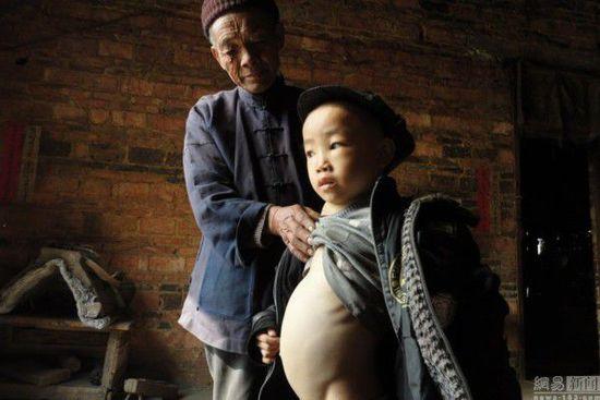 """2013年3月5日10点23分,卢朝礼很焦急地看着跟前的孙子,谈起了自己的这个家:""""我们这个地方是山区,土地贫瘠,靠天吃饭。我是1933年出生的人,自记事起,就饿怕了。1968年,大儿子卢延相出生了。大概在他上小学一年级的时候,忽然生病了,我们找当地的医生给他看病,谁知打完针不久,儿子就不会说话了,紧接着就痴呆了,生活无法自理,这让原本就穷的家越过越穷。后来,村里人陆续到外打工挣钱,日子比种地的好过多了。我和老伴没有文化,家里也实在走不开,只能还是靠种地过日子。"""""""