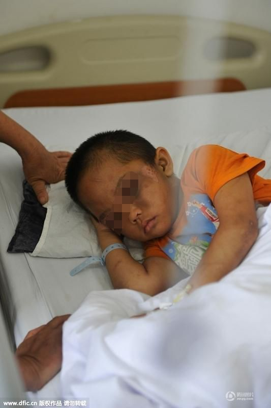 """2015年7月7日,广东佛山,6岁的小进躺在病床上,脸部浮肿,两眼周围淤黑,身上也伤痕累累,是谁竟下如此毒手,把6岁小孩打成这样?19岁""""妈""""自称,因遭家暴才用水管敲打""""儿子""""出气,虐待致伤。"""