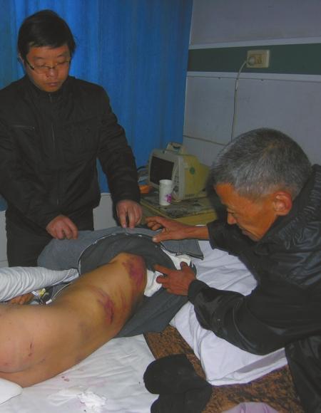 4少年强迫2名男童臀坐鞭炮后点燃爆炸