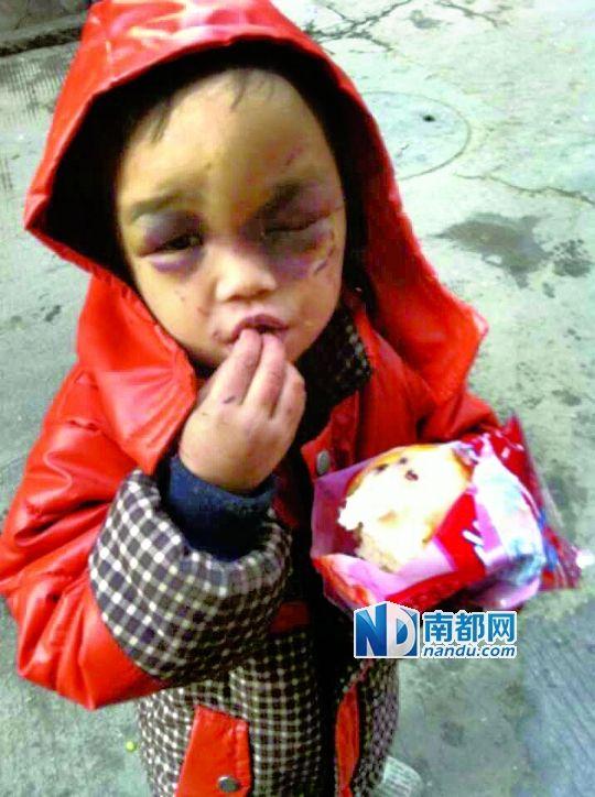 4岁男童和其3岁妹妹被父亲毒打遍体鳞伤