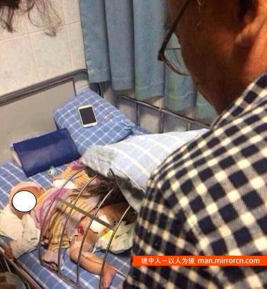 2个月男婴被奶奶剪掉生殖器