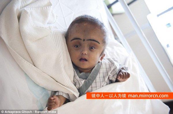 印度大头娃娃手术成功