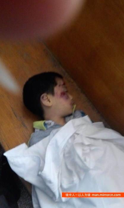 7岁男孩被继母活活打死——因走路慢