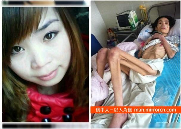 26岁妻子疑遭婆婆虐待体重只有20公斤去世  哎