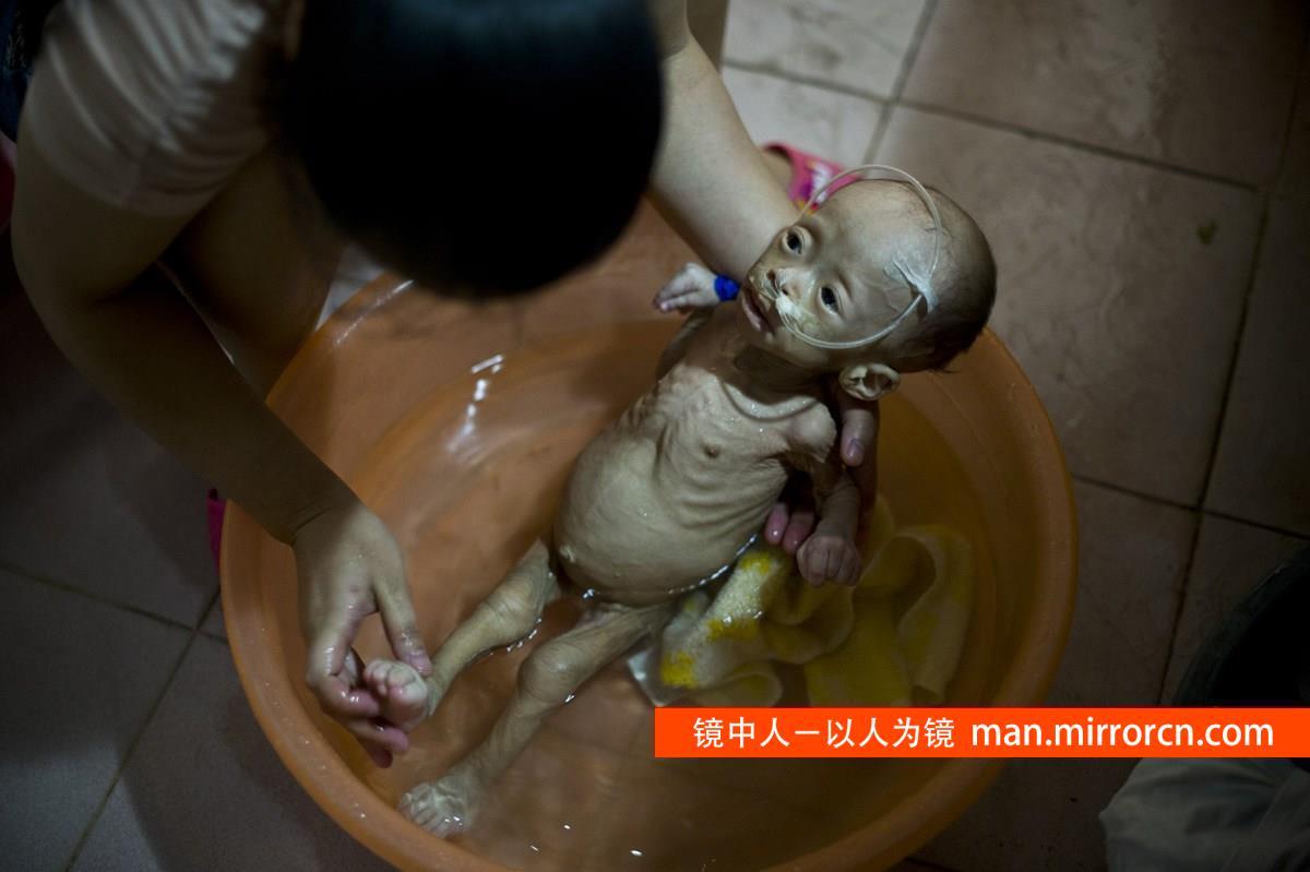1岁婴儿得怪病不生长体重只有不到3公斤