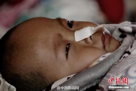 1岁男童父母含泪请求安乐死
