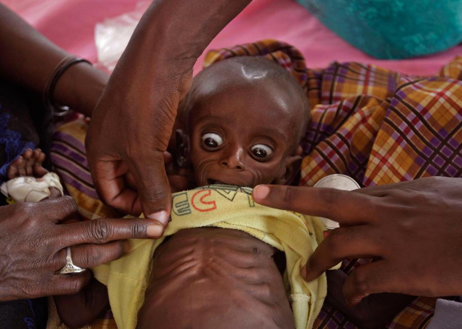 索马里的孩子