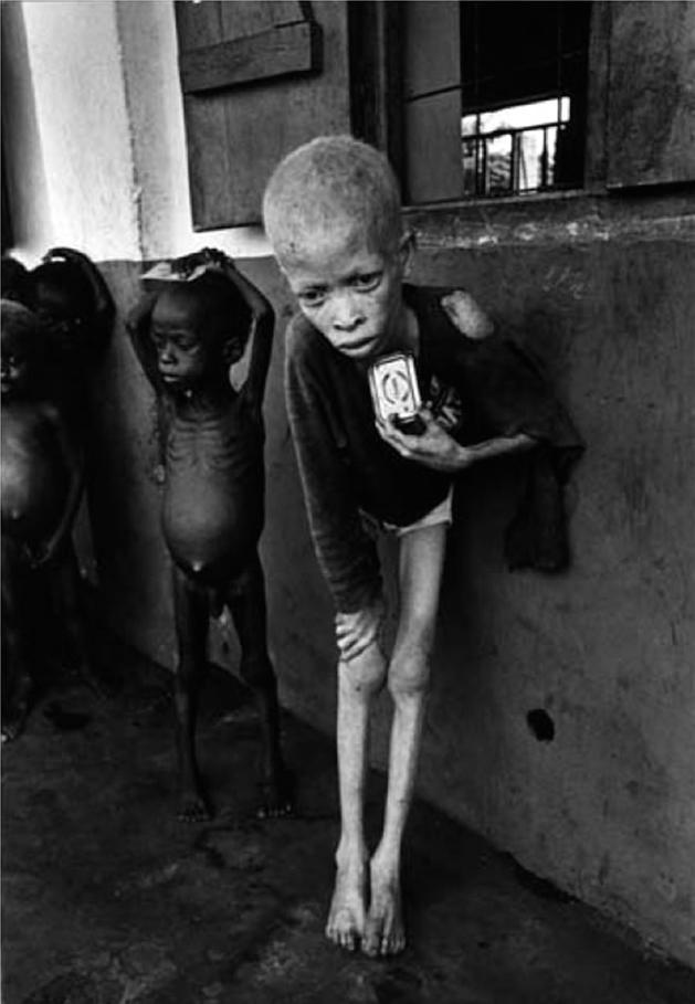 比夫拉战争中的孤儿