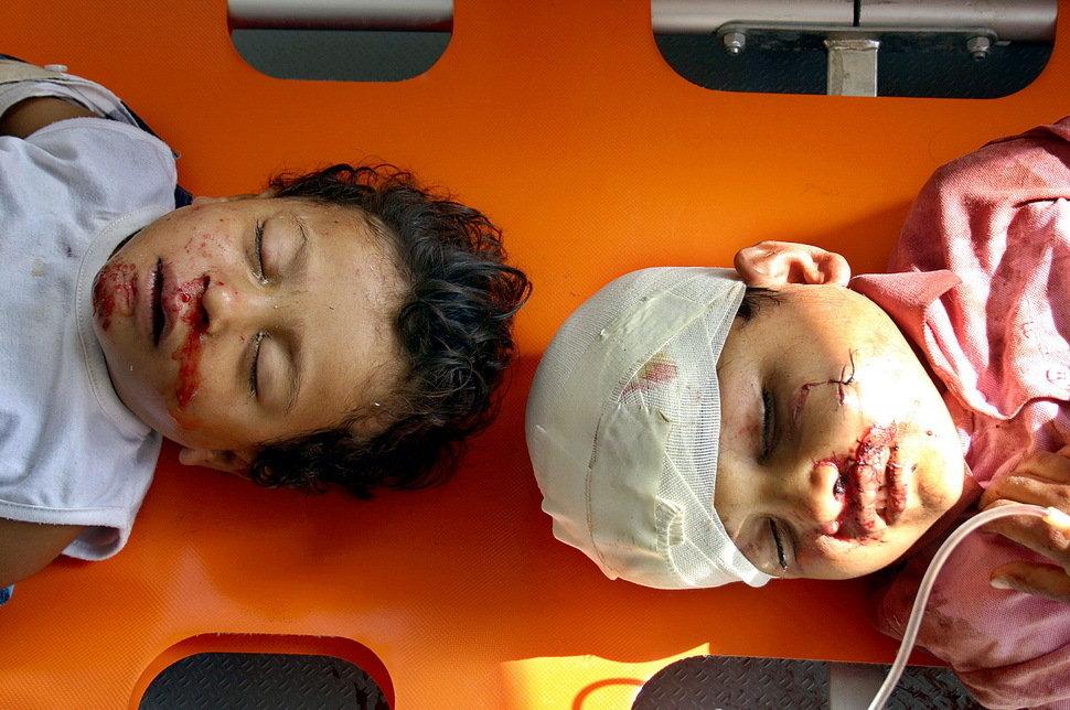 受伤的伊拉克儿童