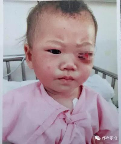 9月大女婴被父亲用筷子戳瞎左眼  心痛!商丘9月大女婴 竟被父亲用筷子戳瞎左眼(组图)